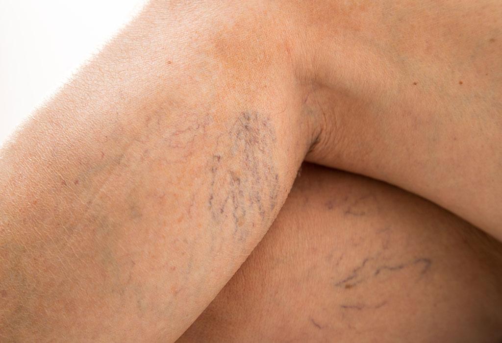 vulvar varicose veins not pregnant