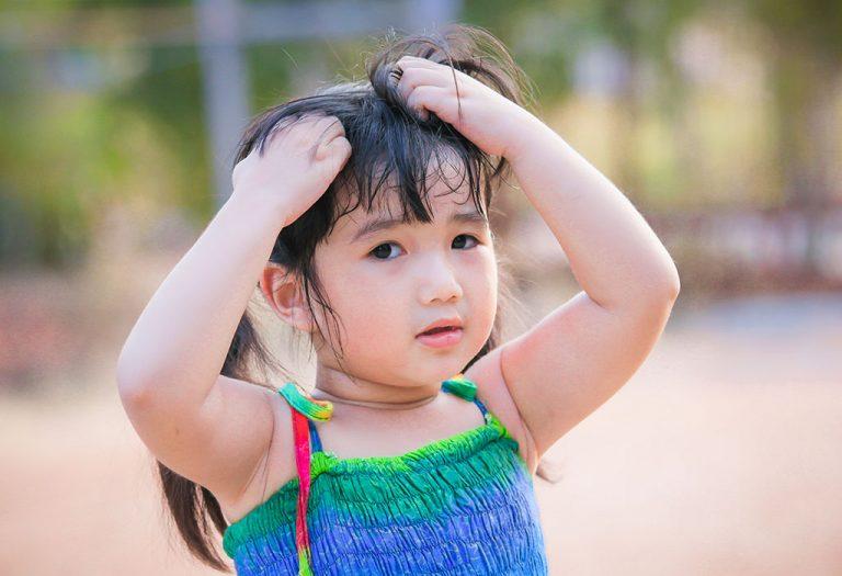 केसांमध्ये उवा होण्याची कारणे