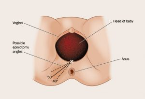 When Is Episiotomy Needed?