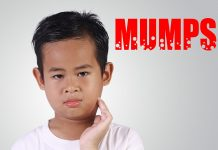 Burns in Children: Causes, Types, Treatment & Home Remedies