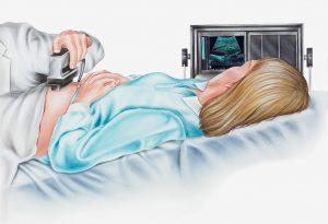 When to Perform Amniocentesis
