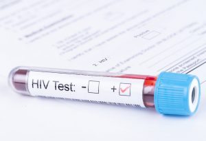 How Is HIV Testing Done?