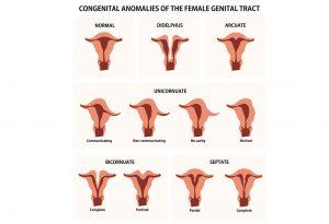 Different Types of Uterus Abnormalities