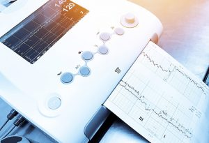 Non-Stress Test (NST) or Cardiotopograph (CTG)