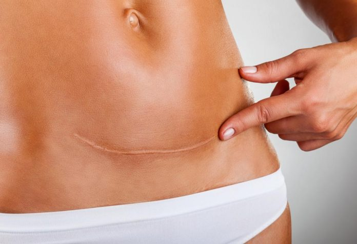 C-section scars - an overview