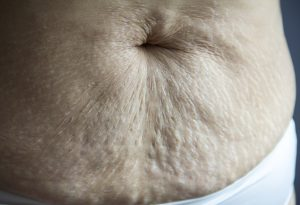How to Tighten Belly Skin after Delivery