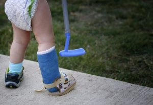 Child with a fractured limb