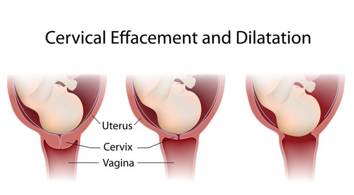 A guide to cervix dilation during labour & birth