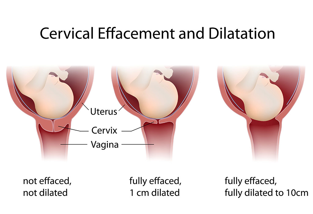 Dilation Of Cervix during Labour & Delivery