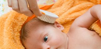 Hair Loss in Babies