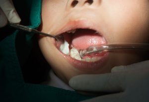 child teeth filling