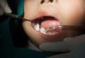 child teeth filling