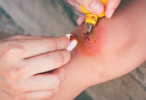 Mother applying ointment to injury in child