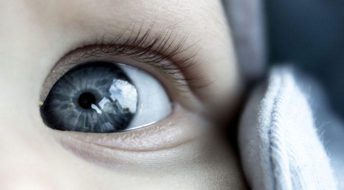 Baby eye problems