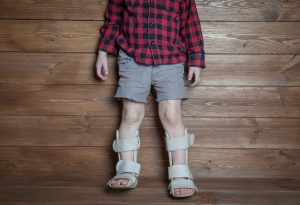 Child wearing an ankle brace