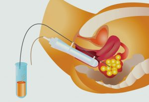 Intra-uterine Insemination