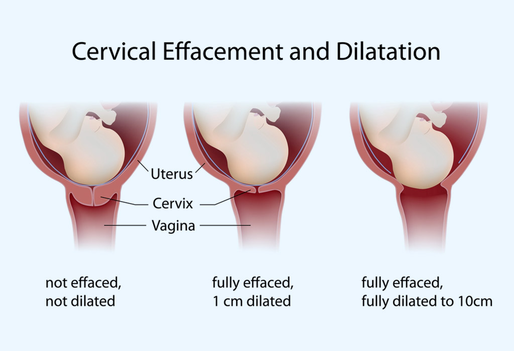 CERVICAL EFFACEMENT AND DILATION