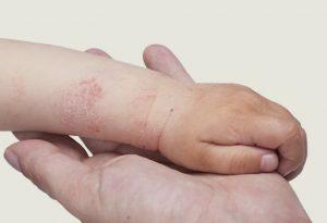 Allergy in kids