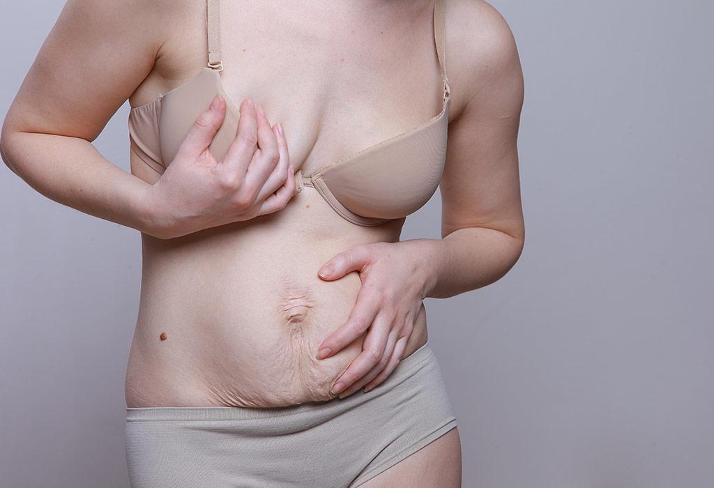What Does Diastasis Recti Look Like In Pregnancy