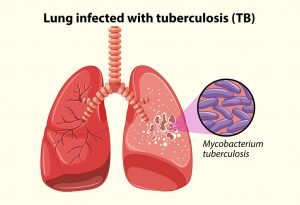 Illustration of lungs infected with tuberculosis
