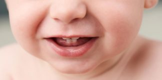 A baby showing its first few teeth