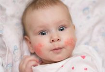 Newborn with an allergic rash on the cheeks