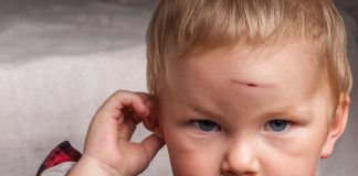 HEAD INJURY IN CHILDREN