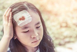 EXTERNAL HEAD INJURY
