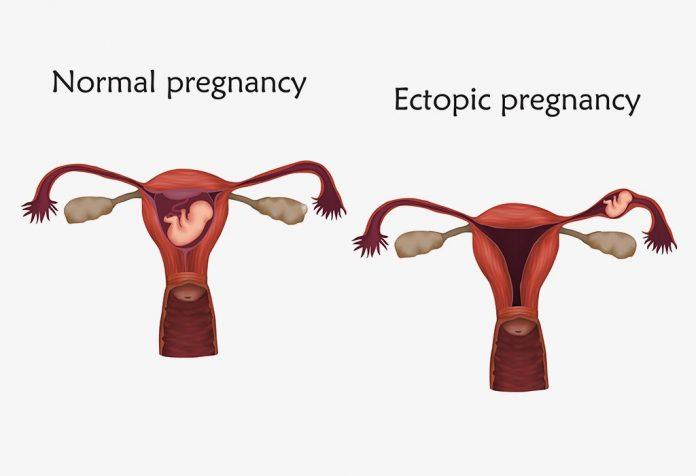 HETEROTOPIC PREGNANCY