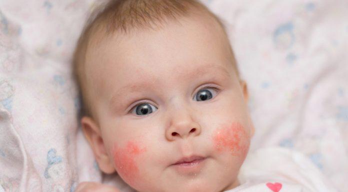 Baby sunburn skin