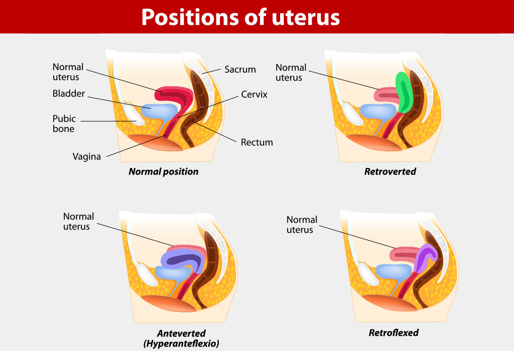 What Is an Anteverted Uterus?