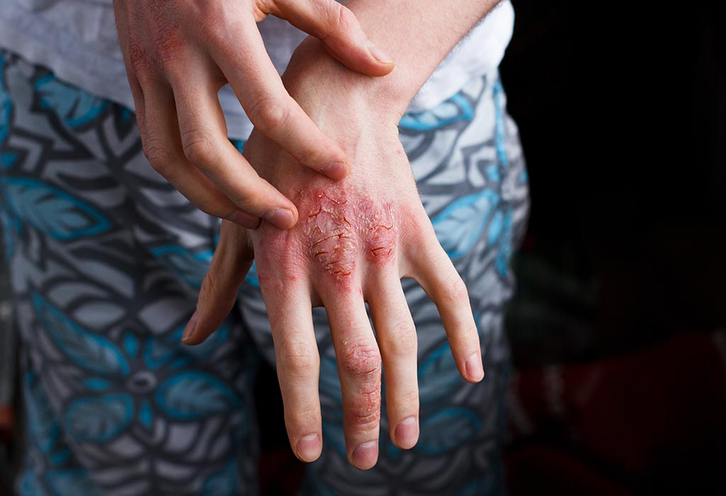 can you develop psoriasis during pregnancy
