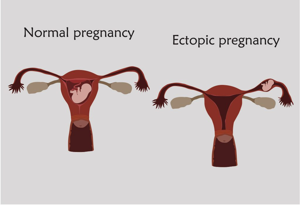 Causes of Nonviable Pregnancy
