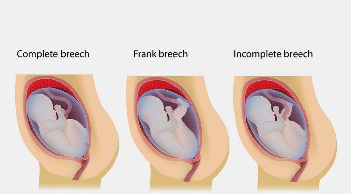 4 Common Breech Baby Birth Defects