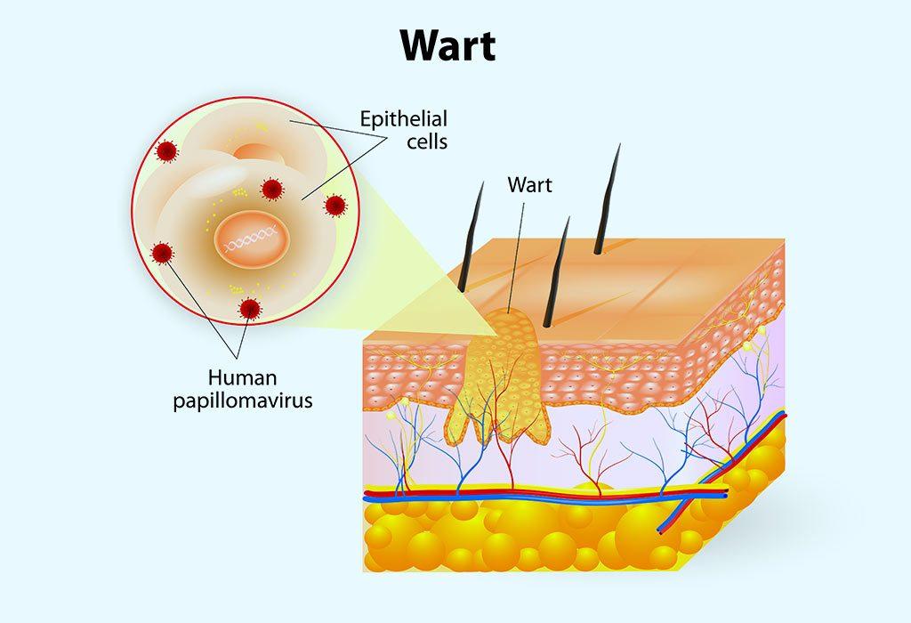Warts anatomy