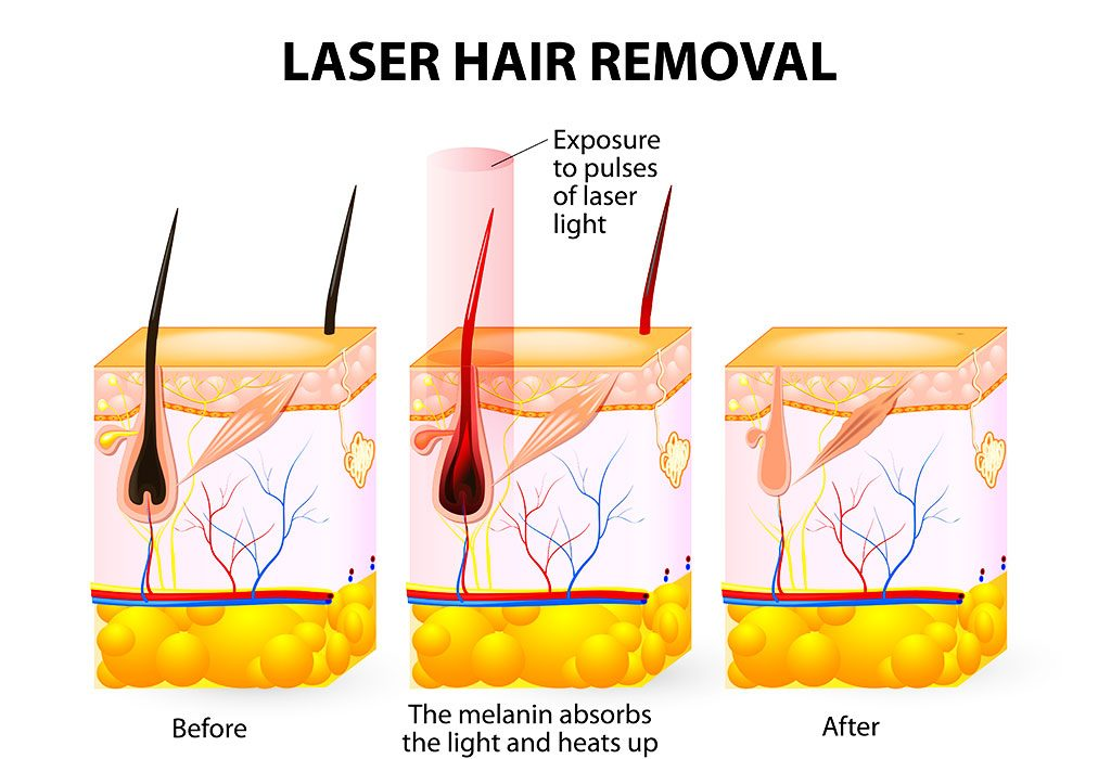 LASER RAYS ACT ON THE FOLLICLES