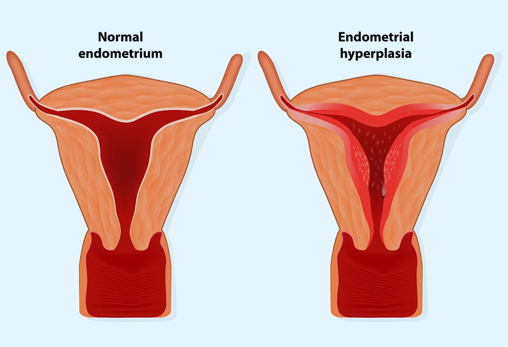 Endometrial Thickness: What's the Normal Range for Conceiving?
