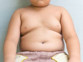 How to Lose Weight for Kids- 10 Easy Ways