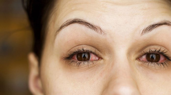 Conjunctivitis (Pink Eye) during Pregnancy