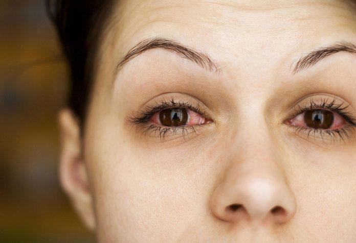 Conjunctivitis (Pink Eye) during Pregnancy