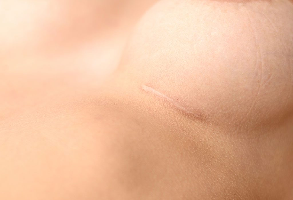 Breast implant scar
