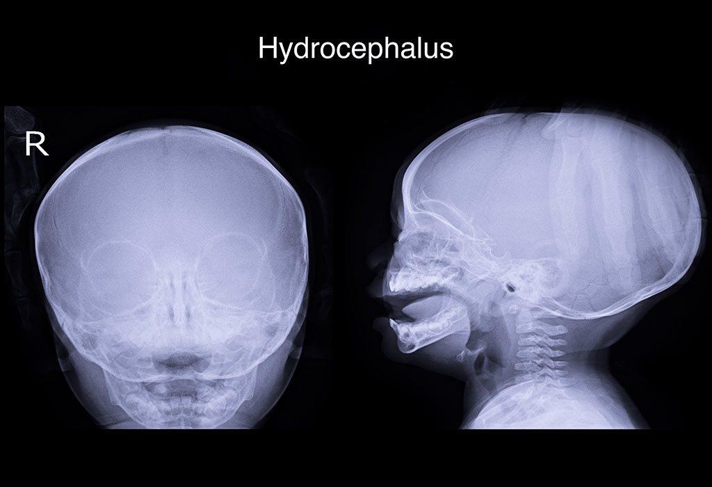 What Is Hydrocephalus in Infants?