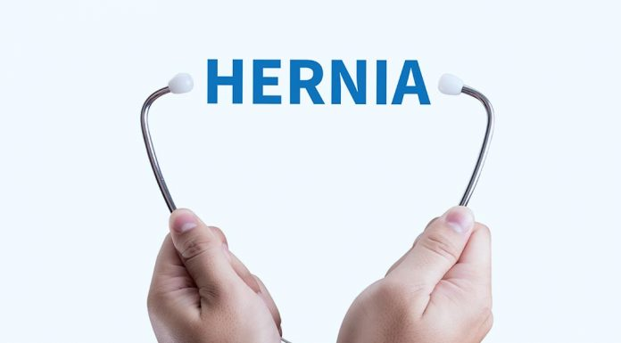Umbilical Hernia after Pregnancy