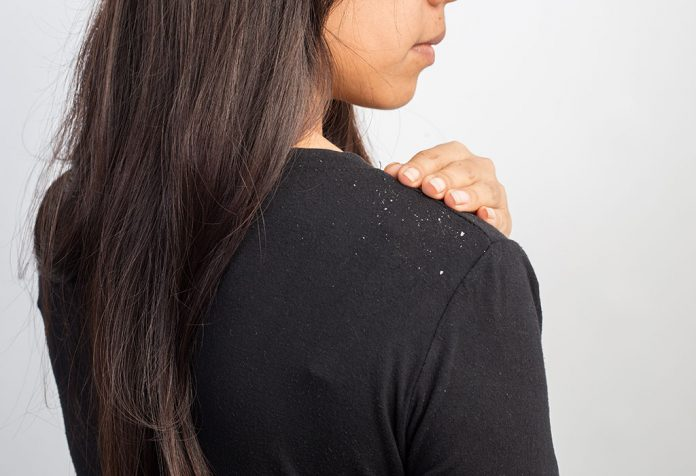 Dandruff During Pregnancy - Causes and Remedies