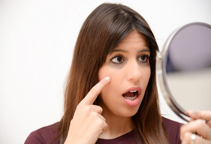 Dark Circles during Pregnancy - Causes and Remedies