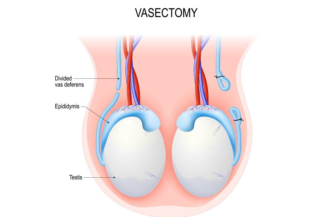 Diagrammatic representation of vasectomy