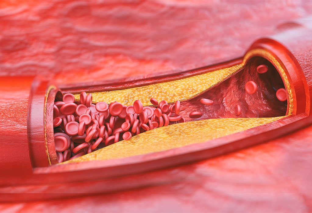 Signs and Symptoms of High Cholesterol