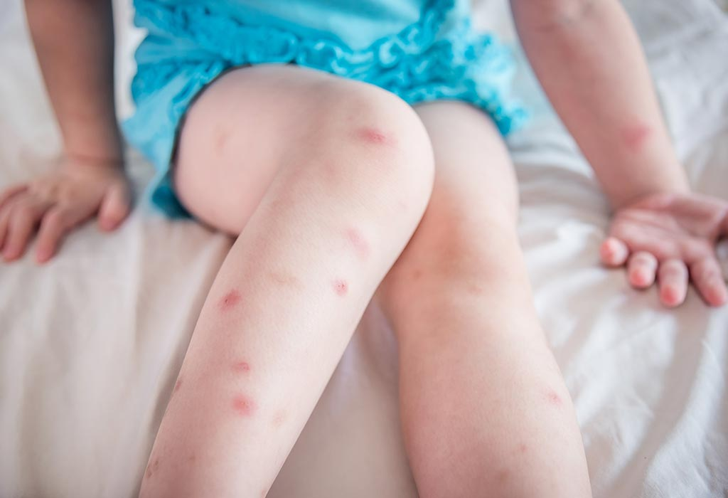 Scars In Children Causes Treatment Prevention Home Remedies
