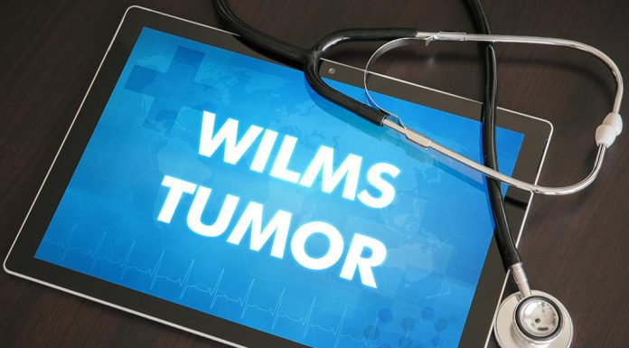 Wilms tumour in kids