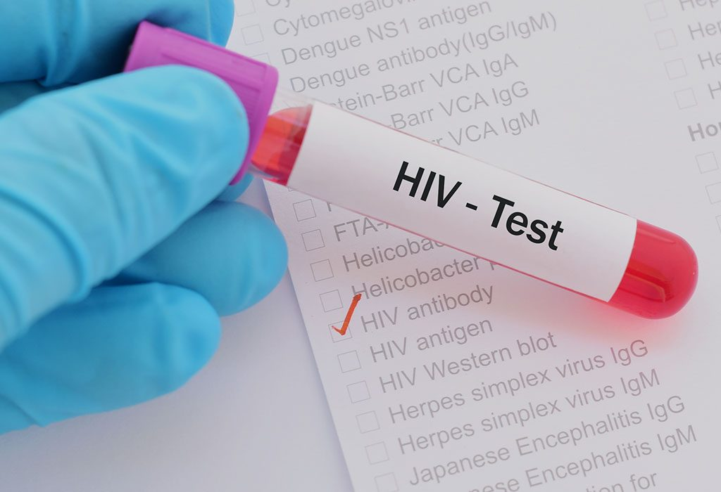 A positive HIV test